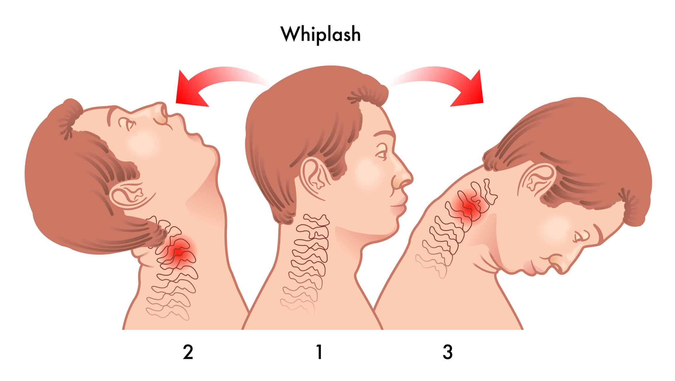 Whiplash