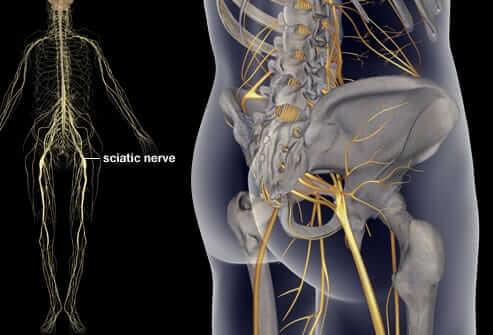 sciatic nerve pain cure